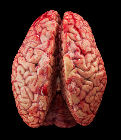 Have you ever seen a real unfixed Human Brain?